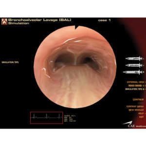 Módulo broncoscopia