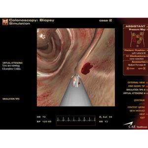 Módulo Trato Gastrointestinal Inferior (GI)
