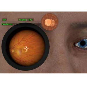 Patologias típicas de vítreo e retina