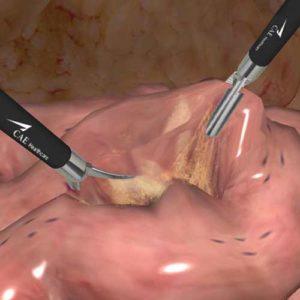 Módulo de colecistectomia